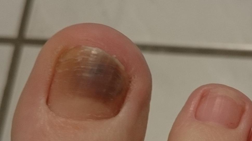 Blauer Zehennagel: Der blaue Fleck kann Bluterguss oder Krebs sein - Foto: Wunderweib.de