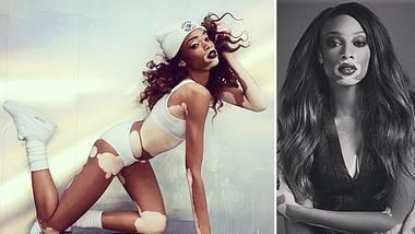 chantelle brown young topmodel trotz hautkrankheit vitiligo - Foto: @winnieharlow on Instagram