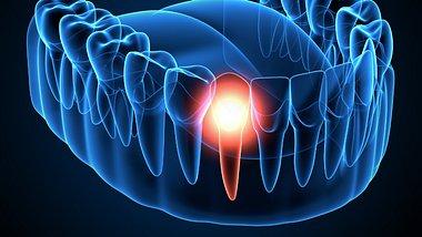 Corona: Parodontitis (chronische Zahnfleischentzündung) erhöht das Risiko für einen hohen Verlauf - Foto: Montage aus: Alona Siniehina/iStock & Bertrand Blay/iStock
