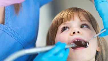 Fluorose: Dentalfluorose kann weiße Flecken auf den Zähnen verursachen (Symbolbild) - Foto: PIKSEL/iStock (Symbolbild)