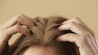 Was hilft gegen juckende Kopfhaut im Sommer? - Foto: triocean/iStock