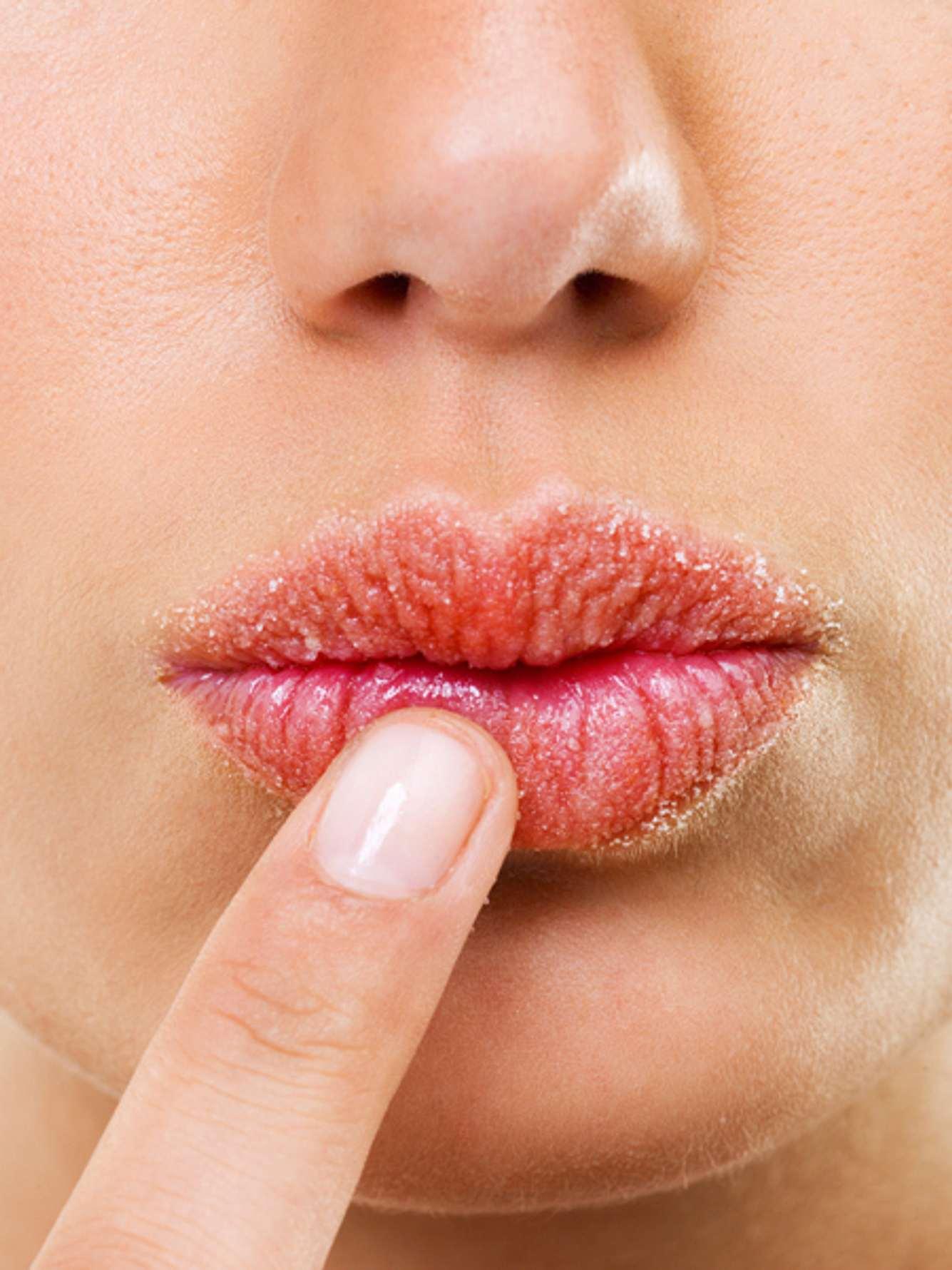 lippen trocken dexpanthenol