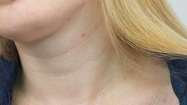Das hilft gegen Pickel am Hals. - Foto: iStock/Alona Siniehina