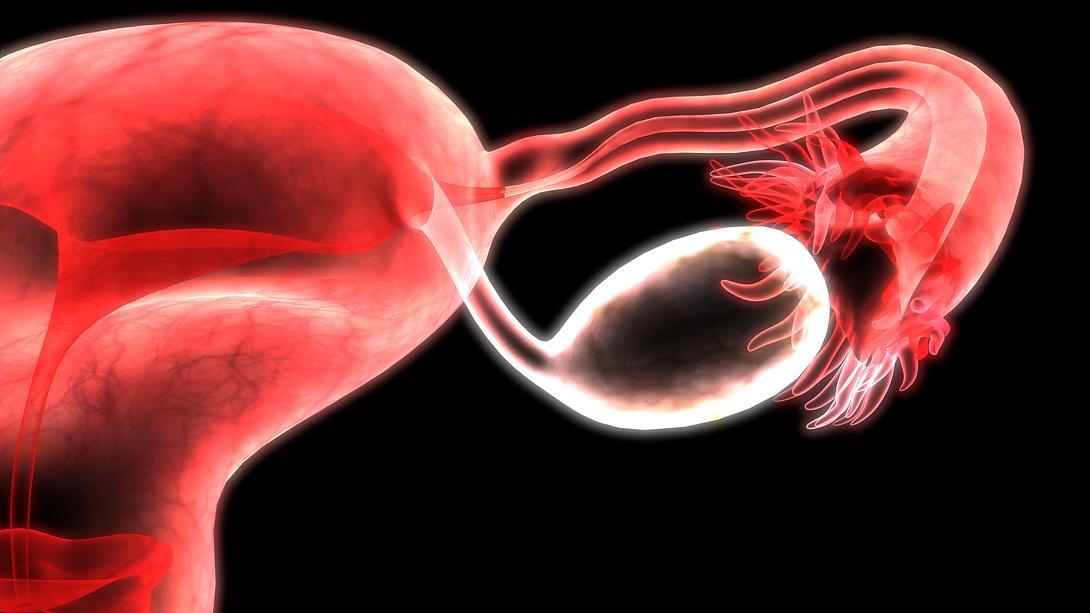 Ein Teratom kann im Eierstock auftreten und die Psyche beeinflussen - Foto: magicmine/iStock