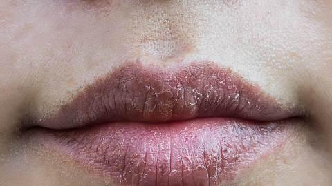 Diese Hausmittel helfen gegen trockene Lippen. - Foto: iStock/AboutnuyLove