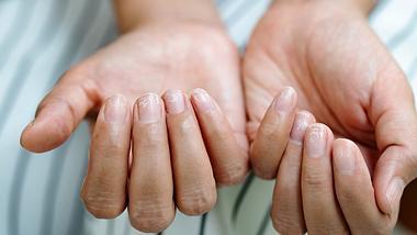 Mittel gegen verfärbte FIngernägel. - Foto: PORNCHAI SODA/iStock