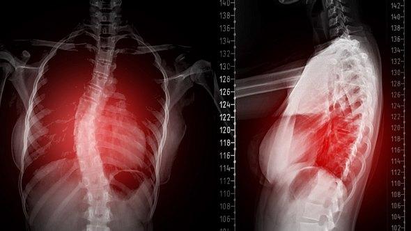 Verkrümmung der Wirbelsäule: Skoliose-Symptome sind oft auch äußerlich sichtbar - Foto: mr.suphachai praserdumrongchai/iStock