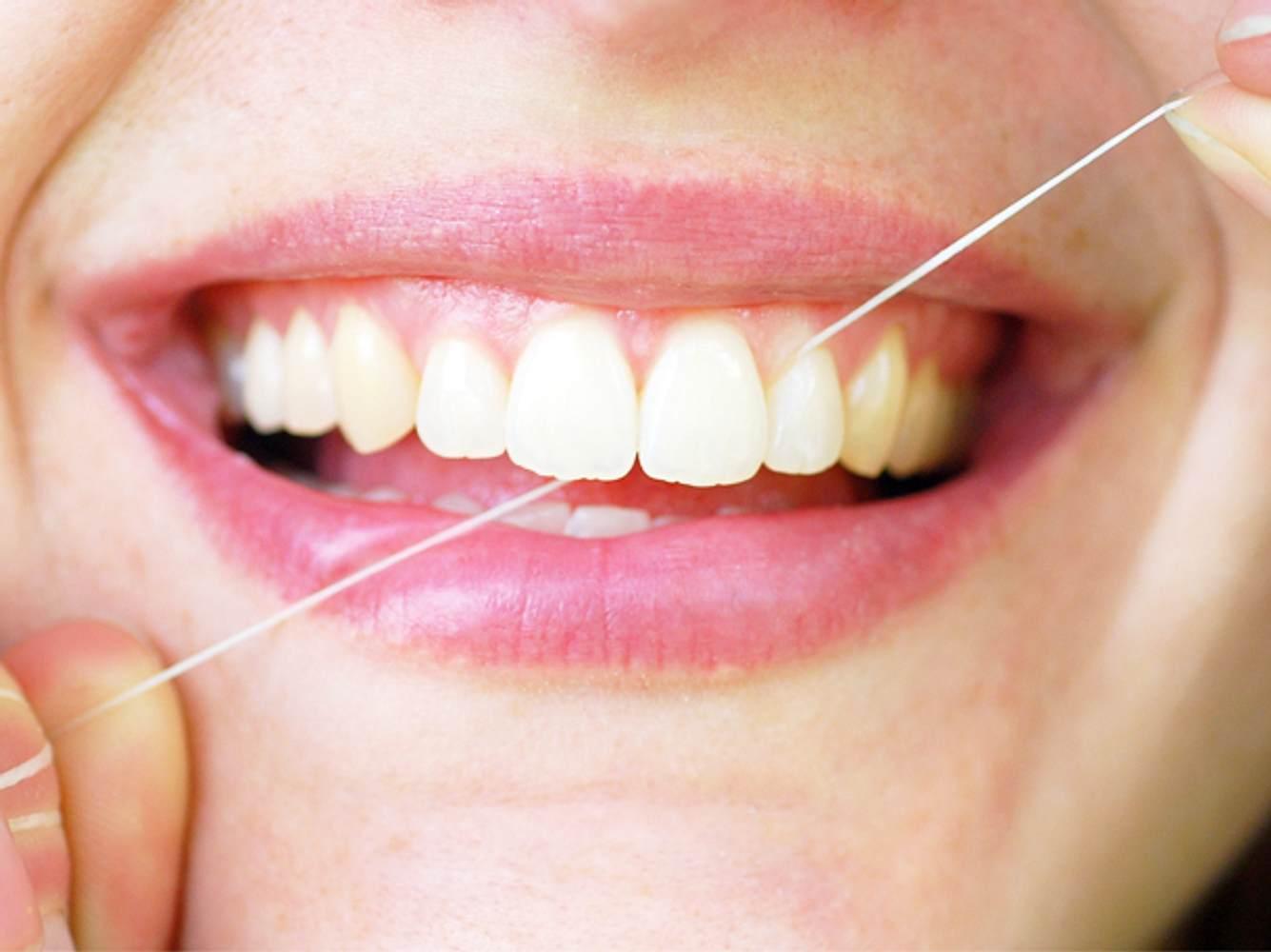Was bringt Zahnseide wirklich?