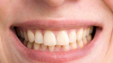 Zahnfleischpflege: Darauf musst du achten - Foto: iStock